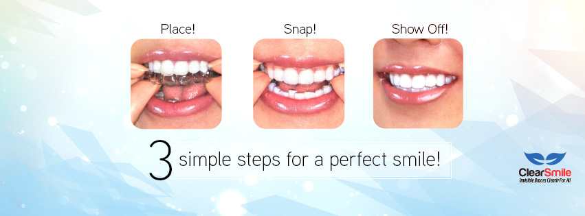 ClearSmile Invisible Aligners 1