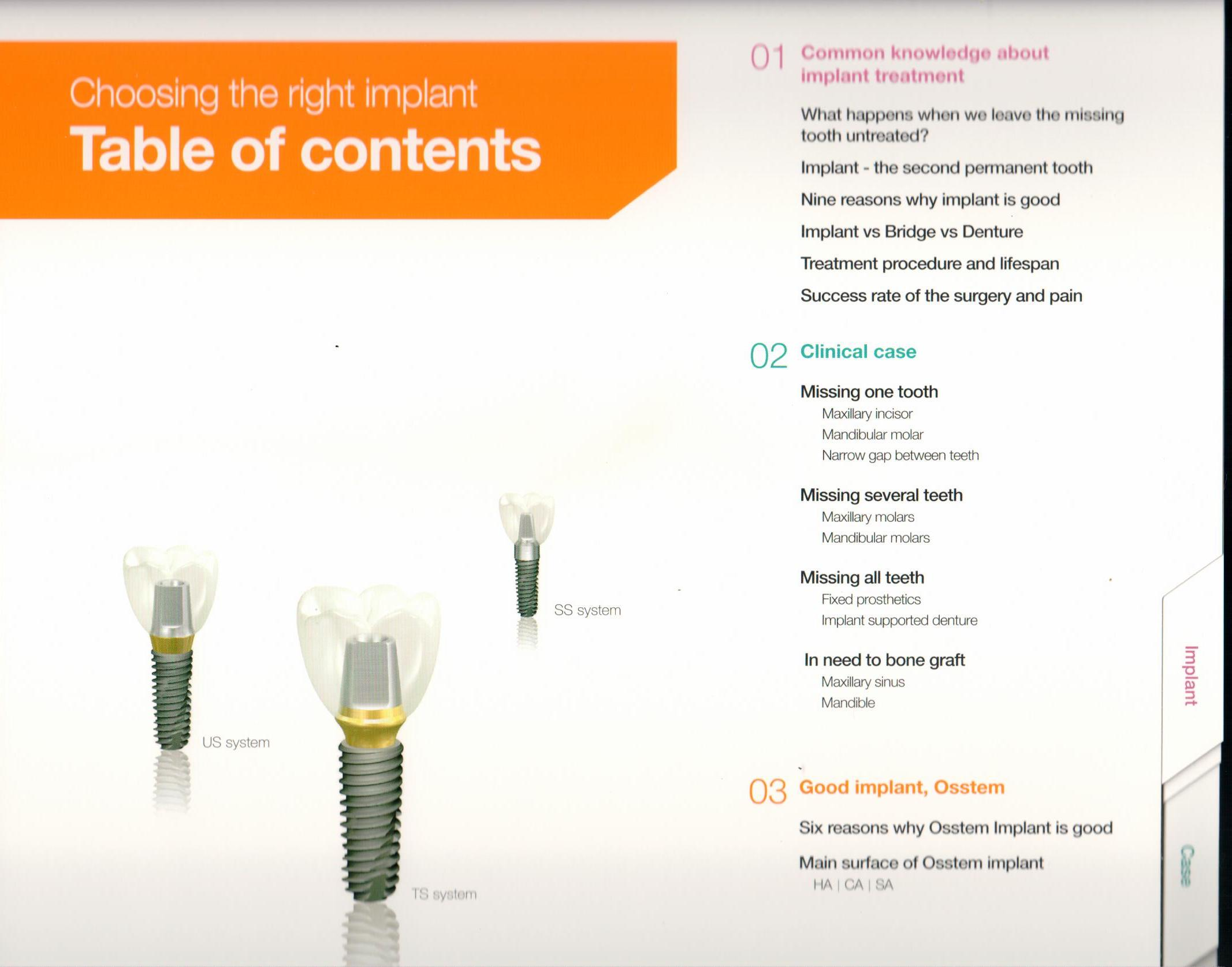 osstem-choosing-the-right-dental-implant-1