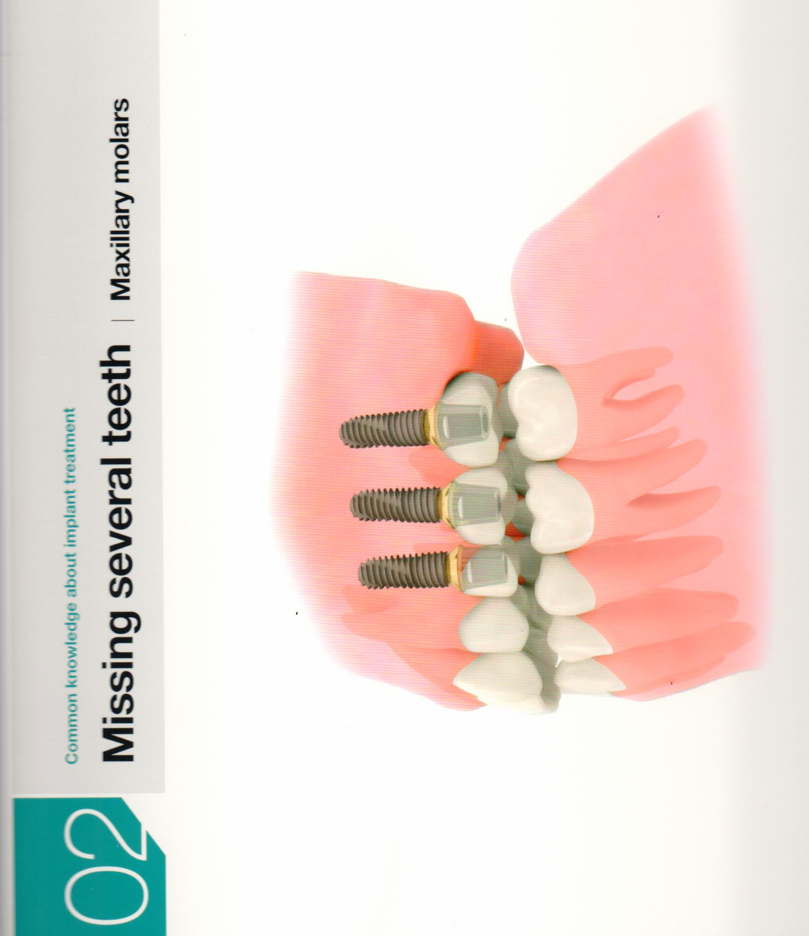osstem-choosing-the-right-dental-implant-11