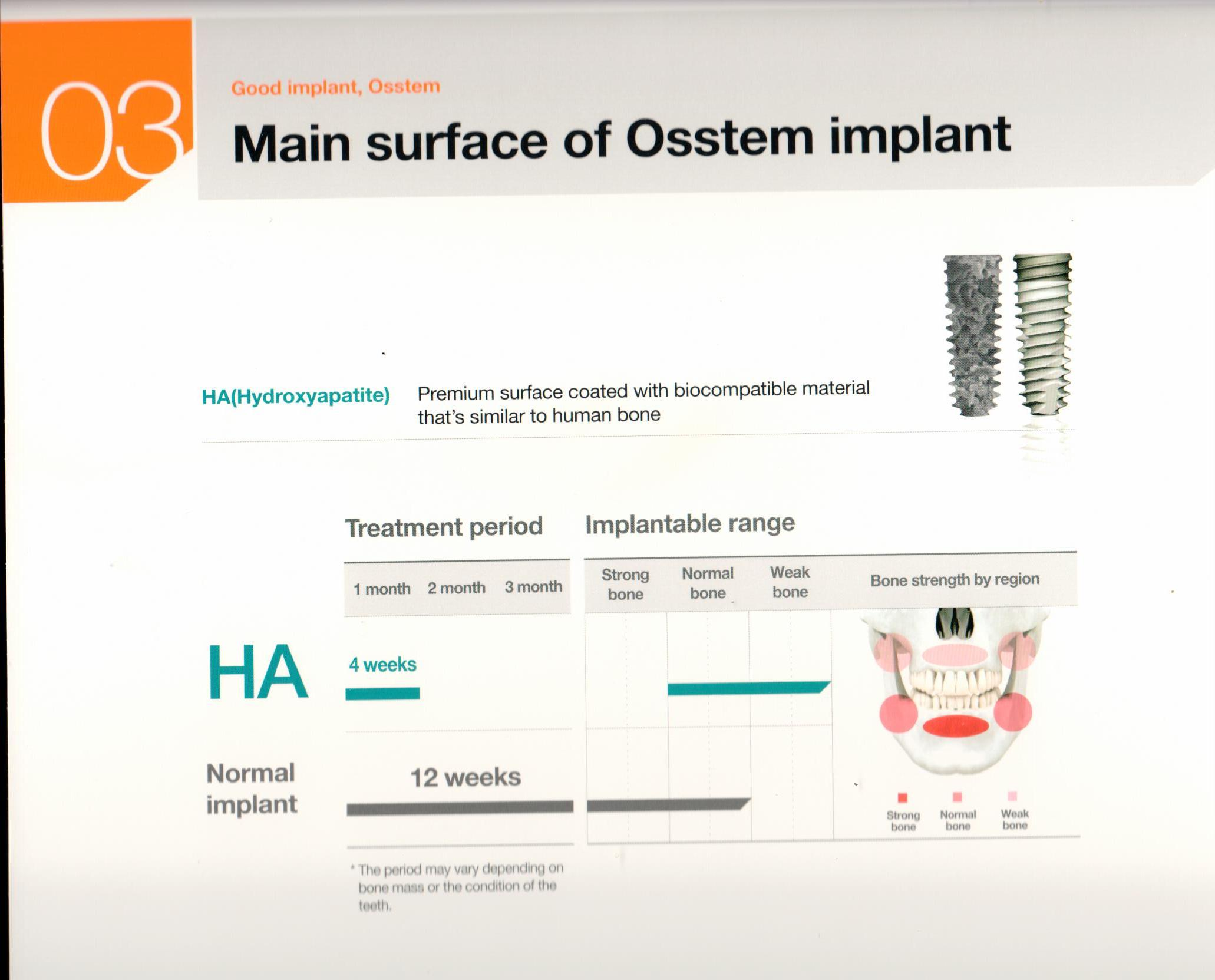 osstem-choosing-the-right-dental-implant-19