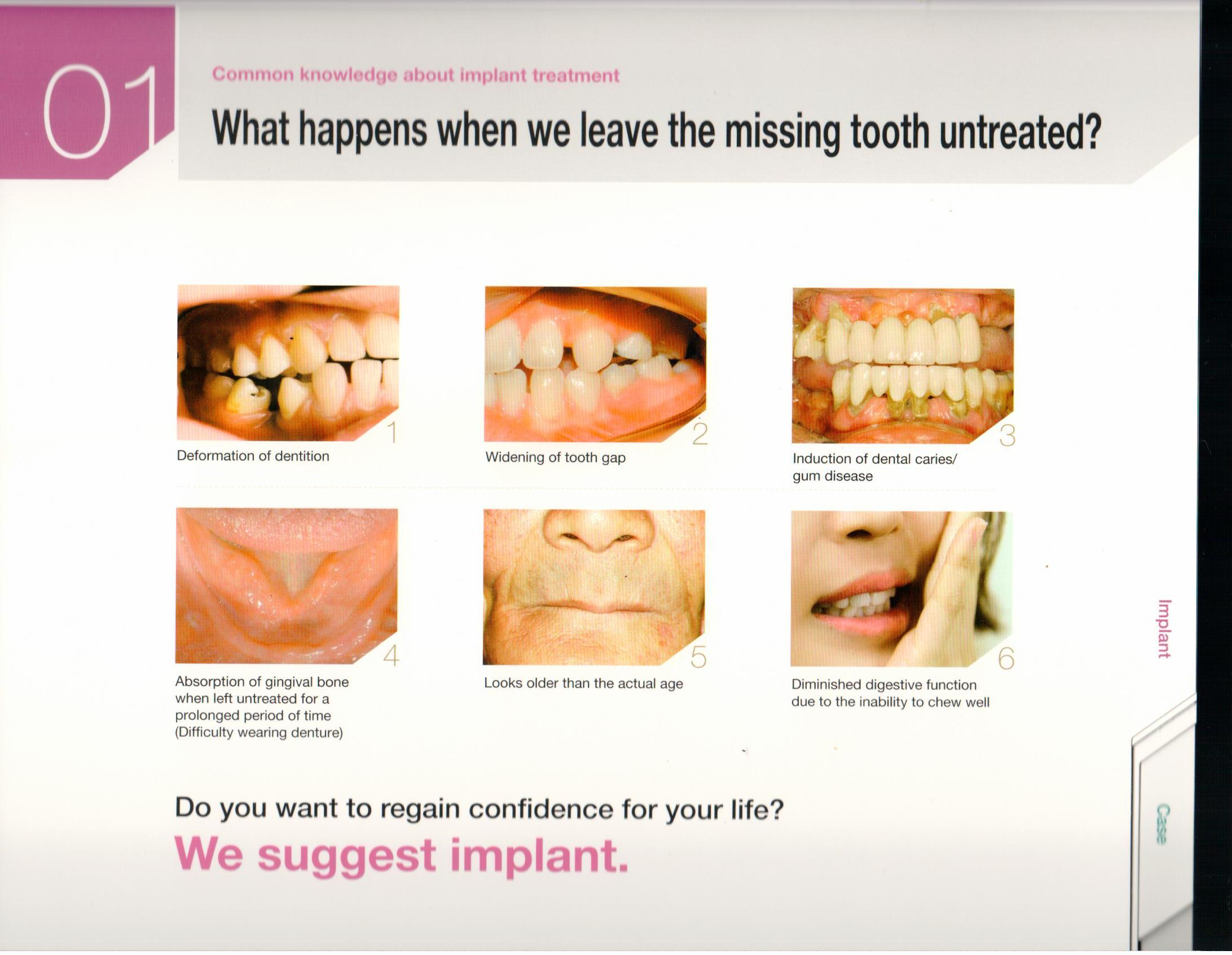 osstem-choosing-the-right-dental-implant-2