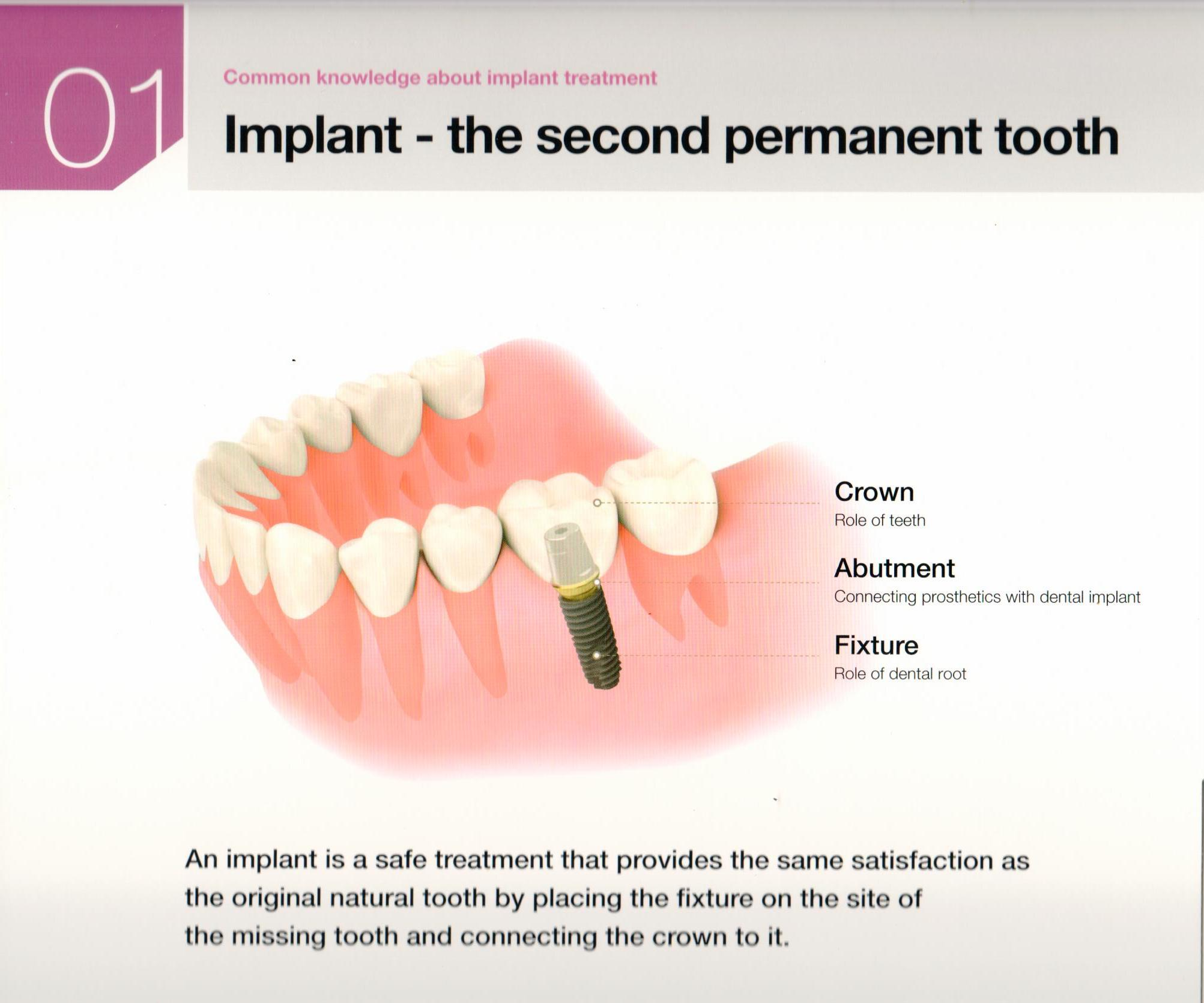 osstem-choosing-the-right-dental-implant-3