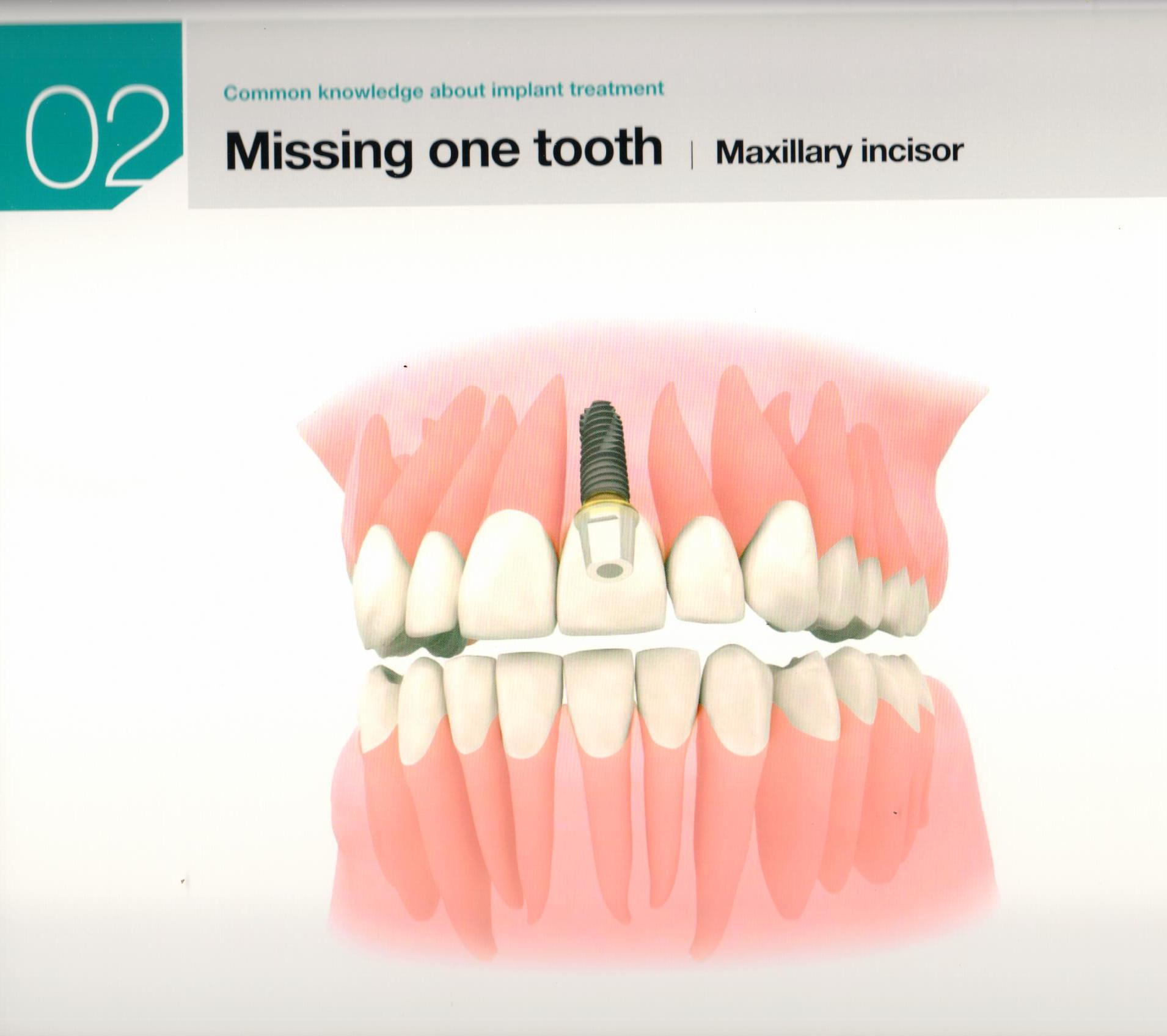 osstem-choosing-the-right-dental-implant-8