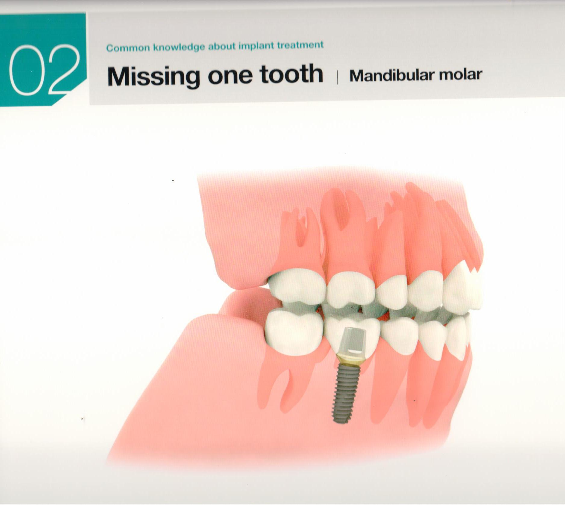 osstem-choosing-the-right-dental-implant-9