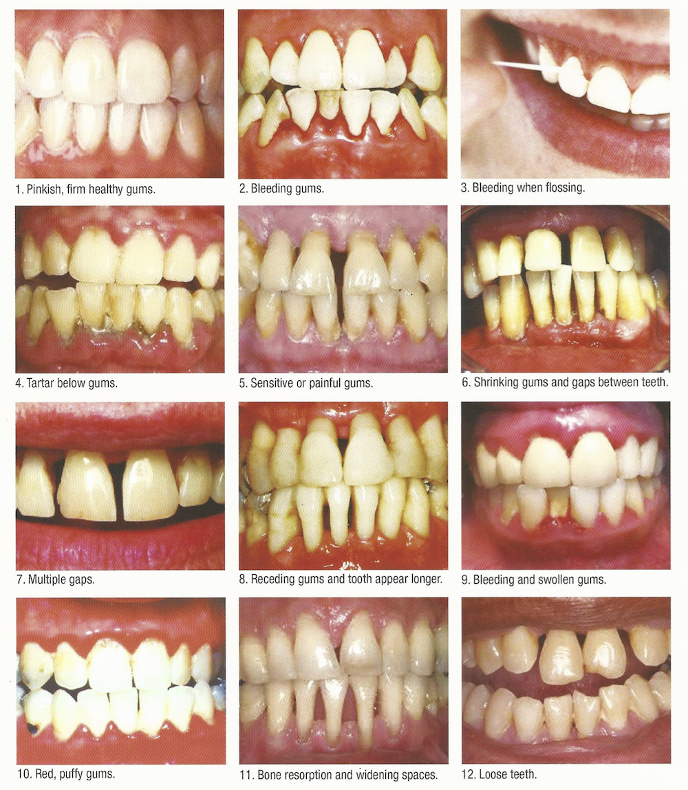gums-gingiva-healthy-pathology-dentistsnearby