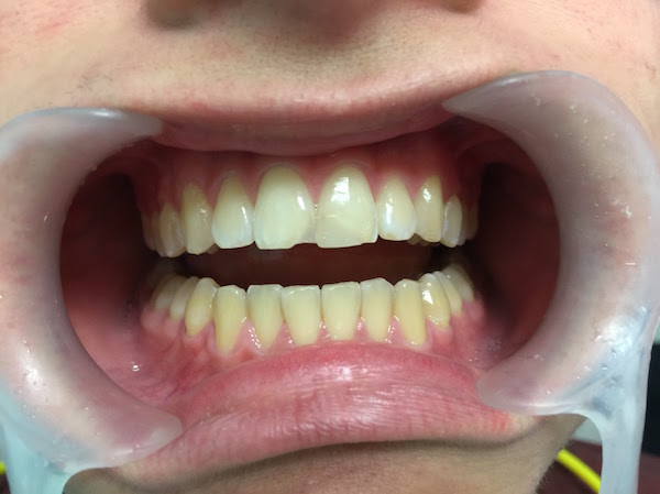 healthy-gums-1