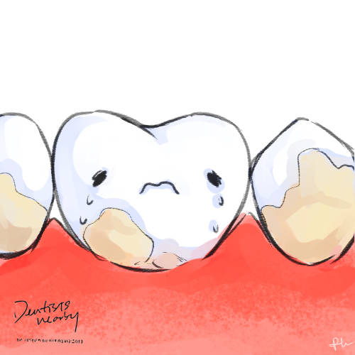 tooth-covered-with-plaque-illustration-dentistsnearby